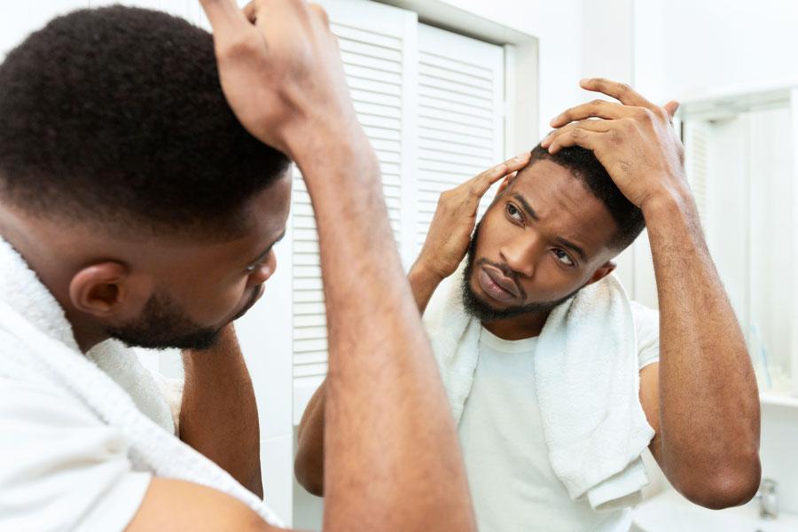 lozione per la perdita di capelli